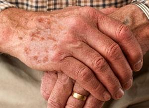 Rizinusöl gegen Altersflecken