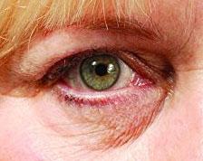 Rizinusöl gegen Augenringe